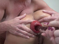 Prolapse Party site review and extreme free videos galleries!